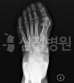 무지외반증 X-RAY : 중족골 사이가 벌어져 있음