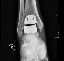 발목 관절 인공관절 치환술