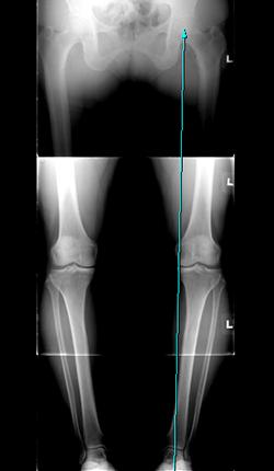 수술전: 체중선이 무릎보다 안쪽으로 치우치는 모습